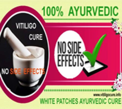 vitiligo ayurvedic treatment